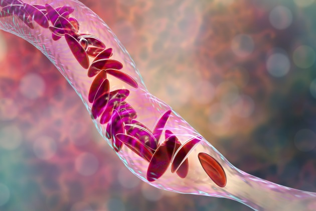 Researchers present new implications for treating sickle cell disease